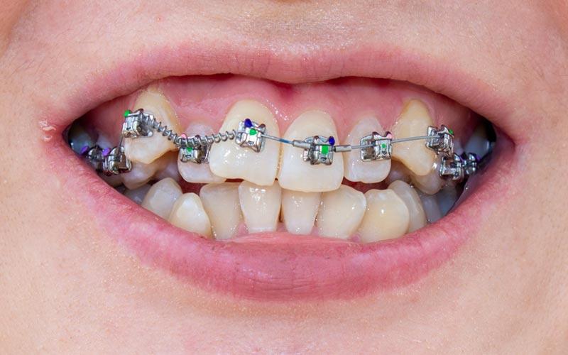 Ortodoncia. Piezas dentales mal alineadas