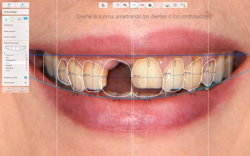Diseño digital de sonrisa de una paciente en Murcia