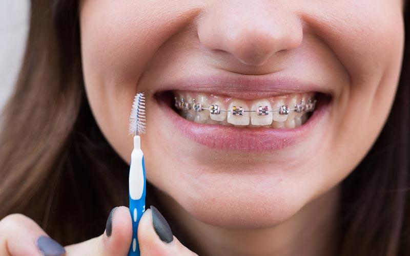 Ortodoncia puede facilitar la higiene bucal diaria