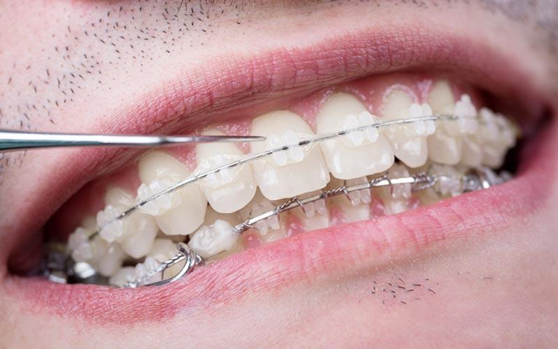 Ortodoncia con brackets cerámicos