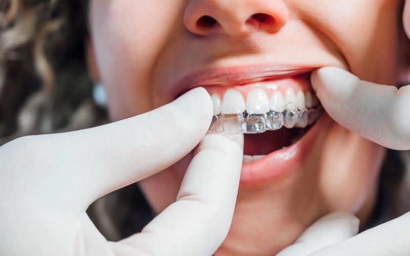 Ortodoncia invisible en paciente