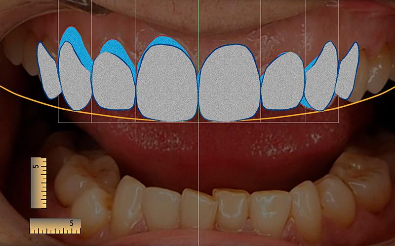 Diseño Digital de Sonrisa en Murcia - Software